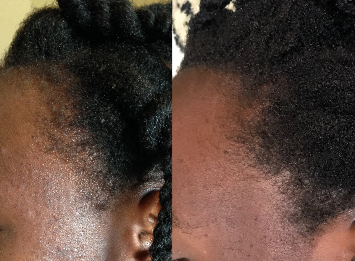 Traction Alopecia How To Grow Back Edges Kinky Curly Charms